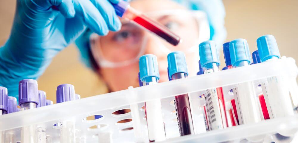 Blood Test Could Help Prevent Lupus Flare-Ups