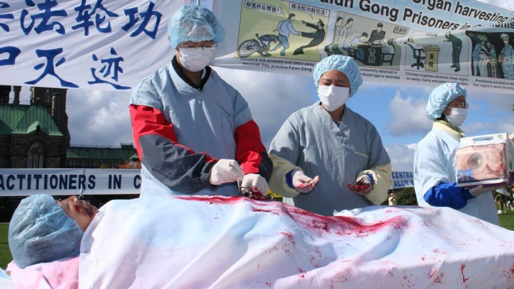 organ harvesting kidney china