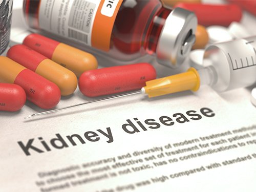 Acute Kidney Injury Could Be Caused By Some Popular Cancer Drugs, New Study Shows