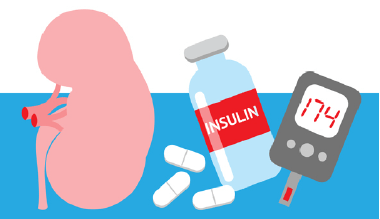 Diabetic Nephropathy Kidney Symptoms Could Be Greatly Improved By Vitamin D