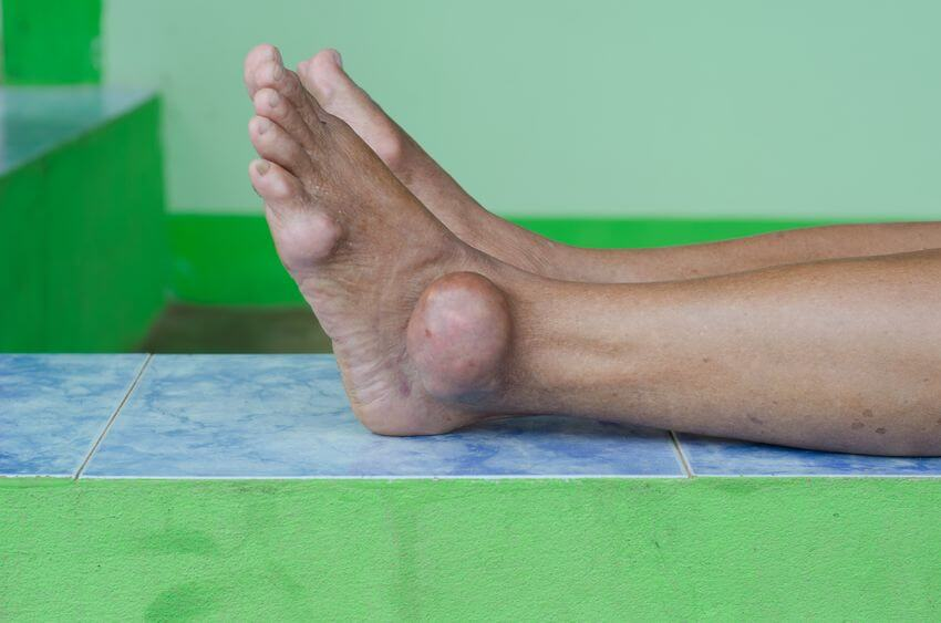 Gout Could Lead To Chronic Kidney Disease According To Latest Research