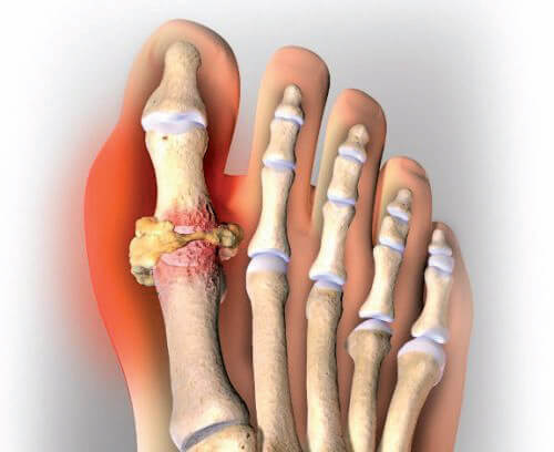 The Connection Between Gout, Chronic Kidney Disease and Diet Will Shock You