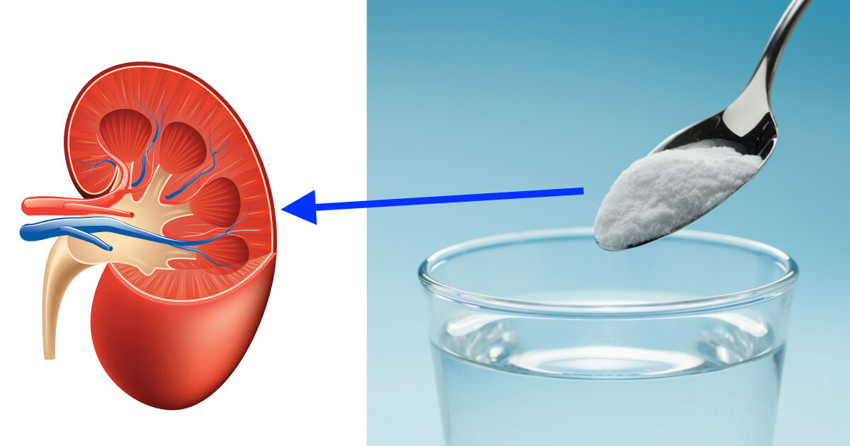 Hyperkalemia and Your Kidneys…The Solution May Be Baking Soda!