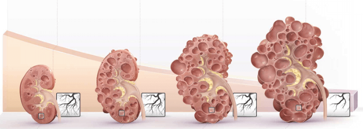 Polycystic Kidney Disease Patients With Anemia At Double The Risk