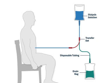 Peritoneal Dialysis May Be The Best Form Of Interim Treatment For CKD