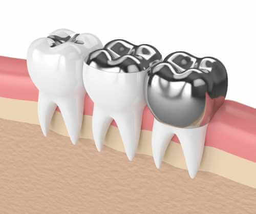 Silver Dental Fillings May Spell Trouble For Those With Kidney Issues